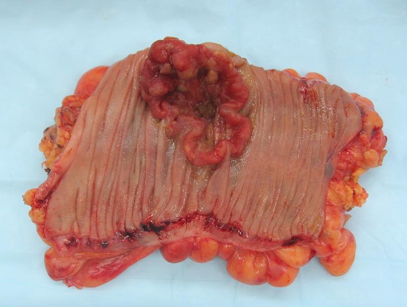 colon-cancer-symptoms