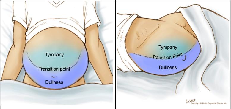 Тест на движение жидкости при изменении положения больного