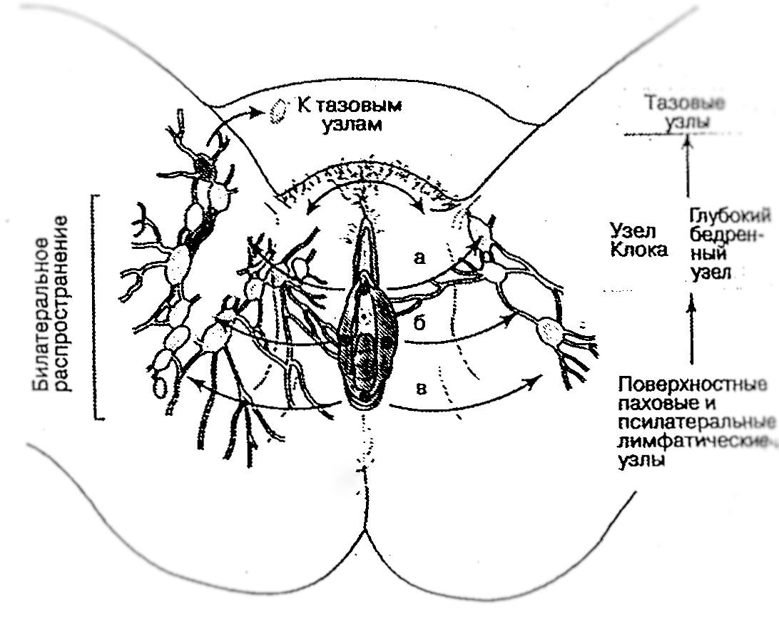 Основные направления метастазирования рака вульвы по лимфе