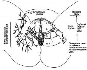 Направления метастазирования при раке вульвы по лимфатической системе